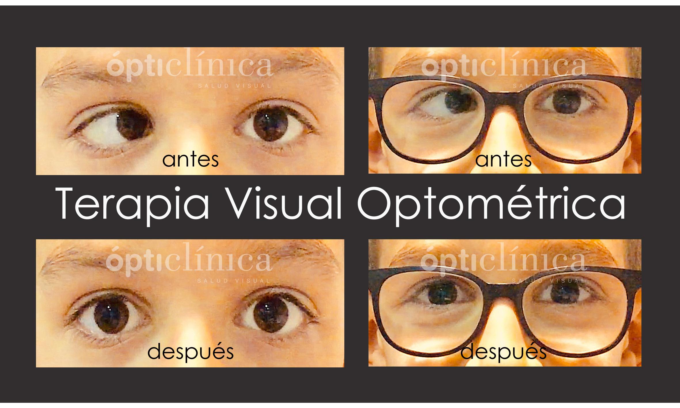 Terapia Visual Optométrica en Estrabismos